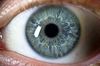 Mye Eye